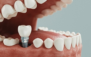 Model of implant retained dental crown