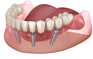 Model All-on-4 denture