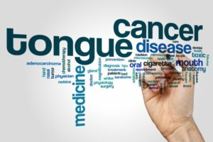 a bunch of words associated with oral cancer